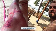 Никита Кузнецов получил загадочные травмы на отдыхе + фото