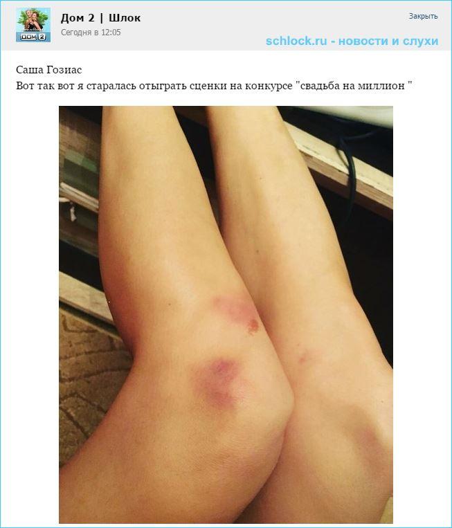 Саша Гозиас на доме 2 натрудила коленки