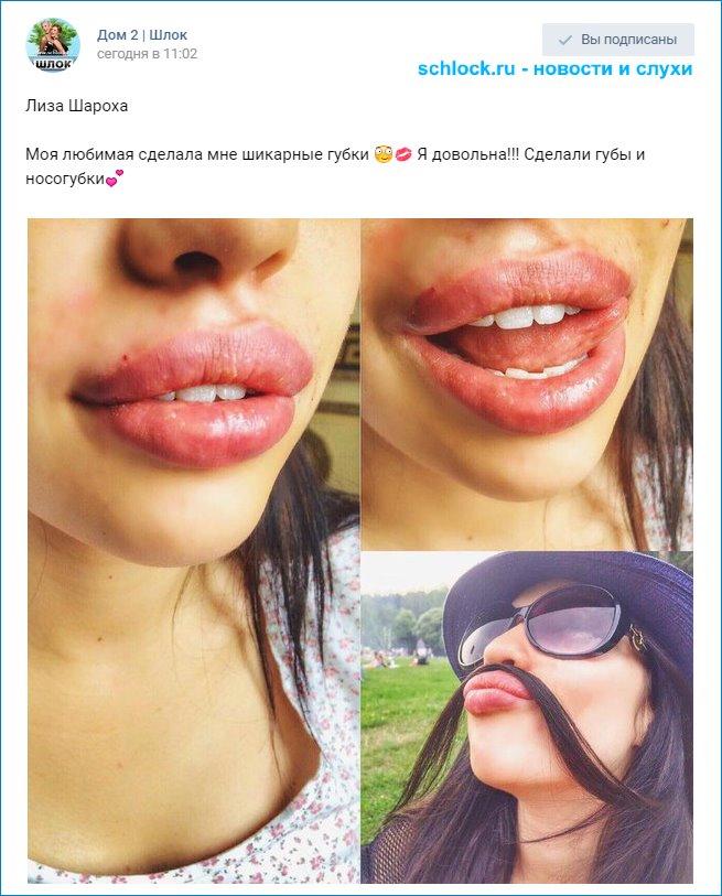 Шароха сделала себе губы