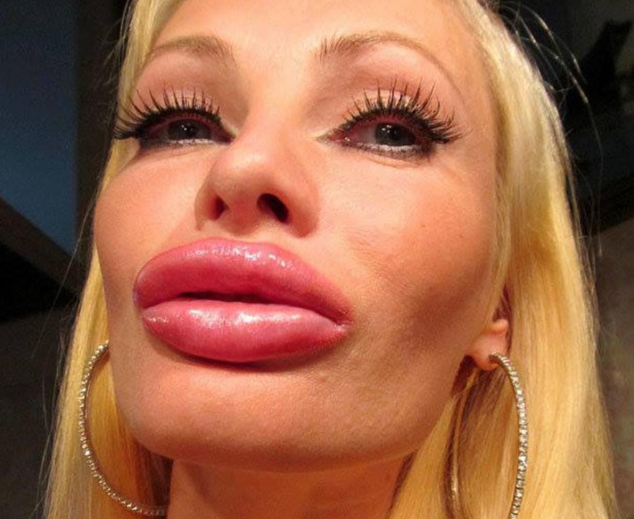 Фото девушек с перекачанными губами